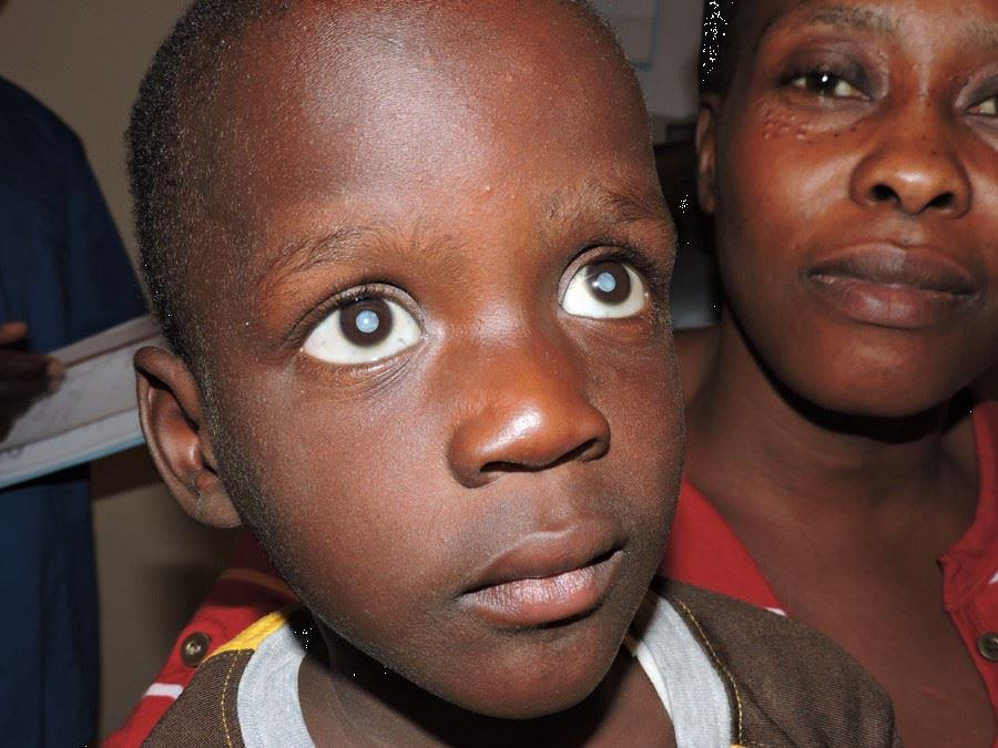 Young Boy With Cataracts